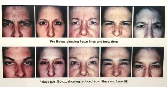 Anti-wrinkle Treatment - Cranley Clinic