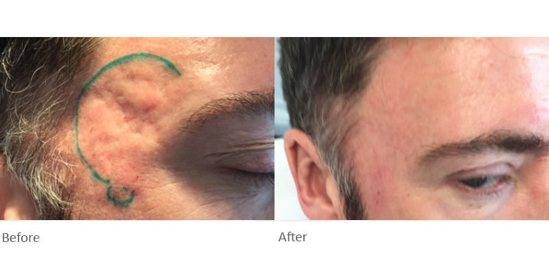 Scar Treatment Clinic - Cranley Clinic