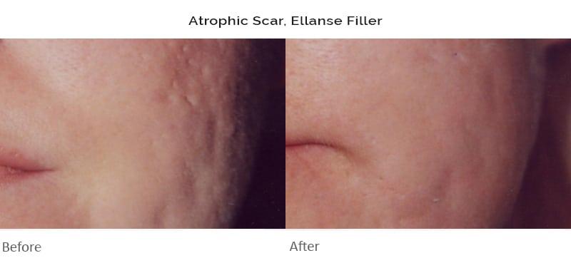 Scar Treatment Clinic - Cranley Clinic