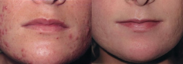 Acne blog - Cranley Clinic